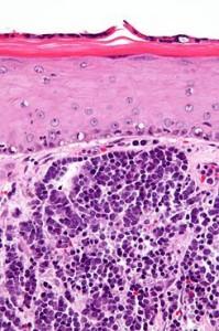 Microfotografia. Tinció hematoxilina-eosina/ Microfotografía. Tinción hematoxilina-eosina.